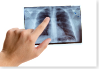 骨粗鬆症の検査・治療